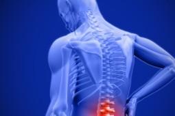 Medical Cannabis for Chronic Back Pain