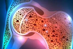 Osteoporosis and Medical Cannabis