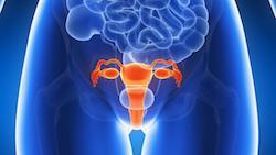 Endometriosis - CA Clinics